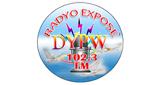 radyo expose