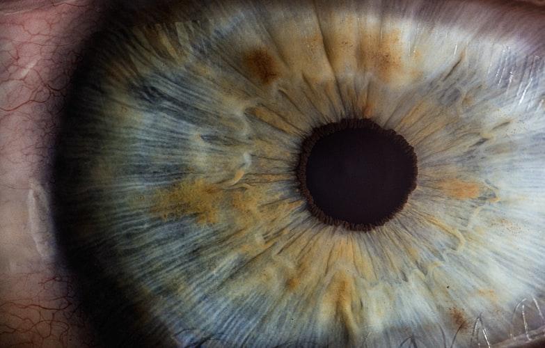 oftamološka klinika banja luka